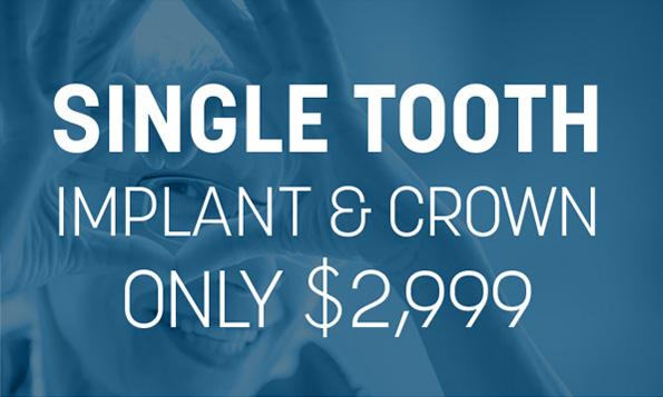 Lovett Dental Heights special offer implant
