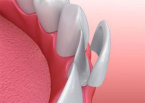 a doctor explaining dental veneers tx